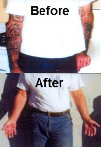 Liberty Program tatoo removal before and after photos